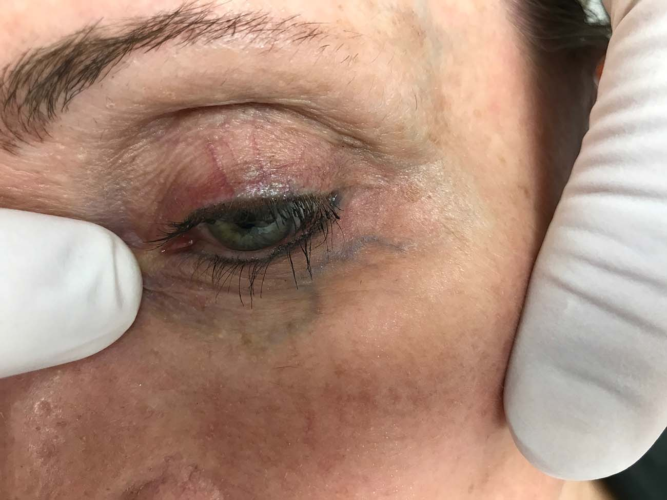 Facial Vein Treatment
